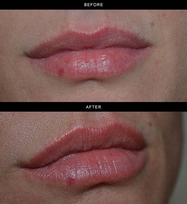 Permanent-Lip-Blush-1.jpg