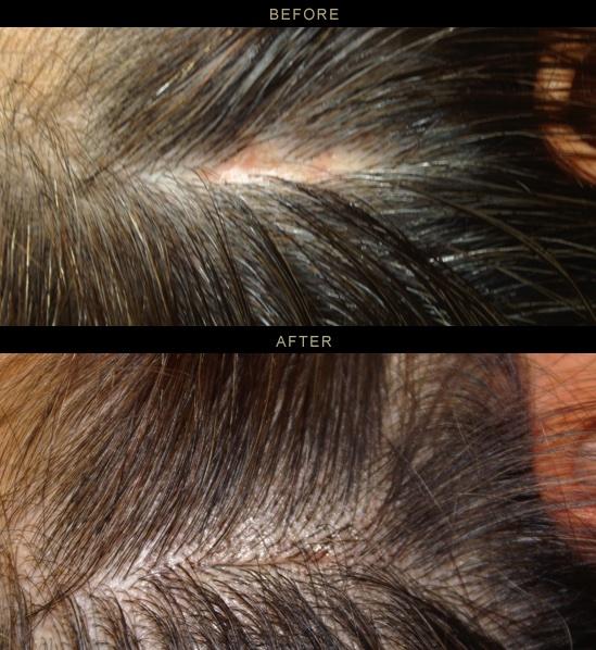 scalp8.jpg